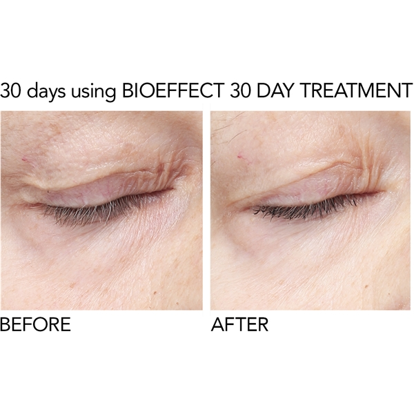 BioEffect EGF Eye Serum (Kuva 4 tuotteesta 6)