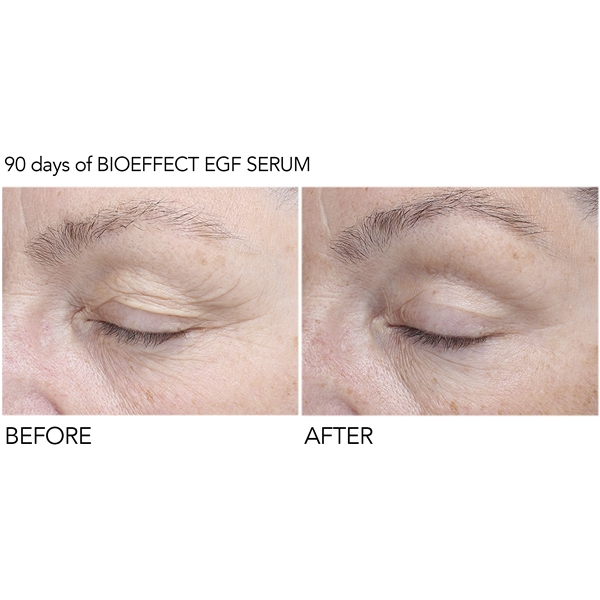 BioEffect EGF Eye Serum (Kuva 5 tuotteesta 6)