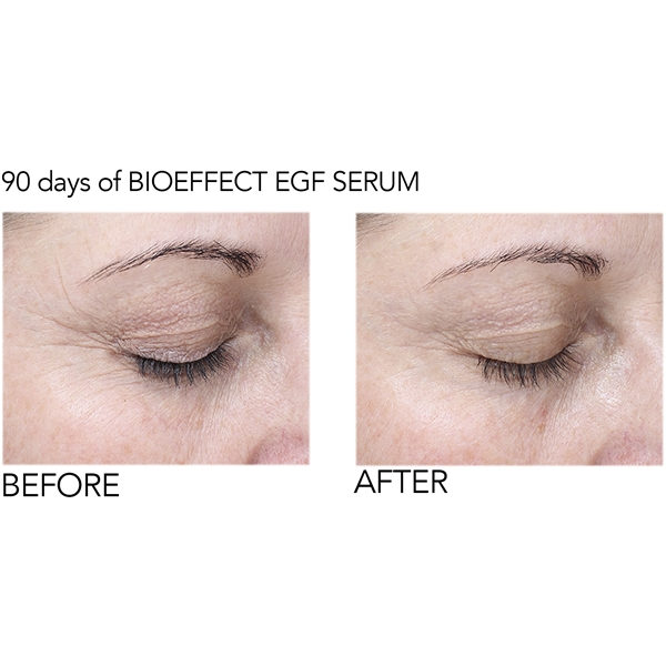BioEffect EGF Eye Serum (Kuva 6 tuotteesta 6)